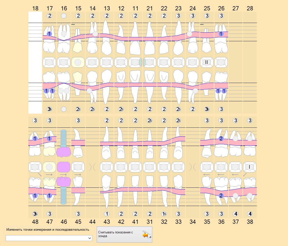 Парадонтологическая карта пациента