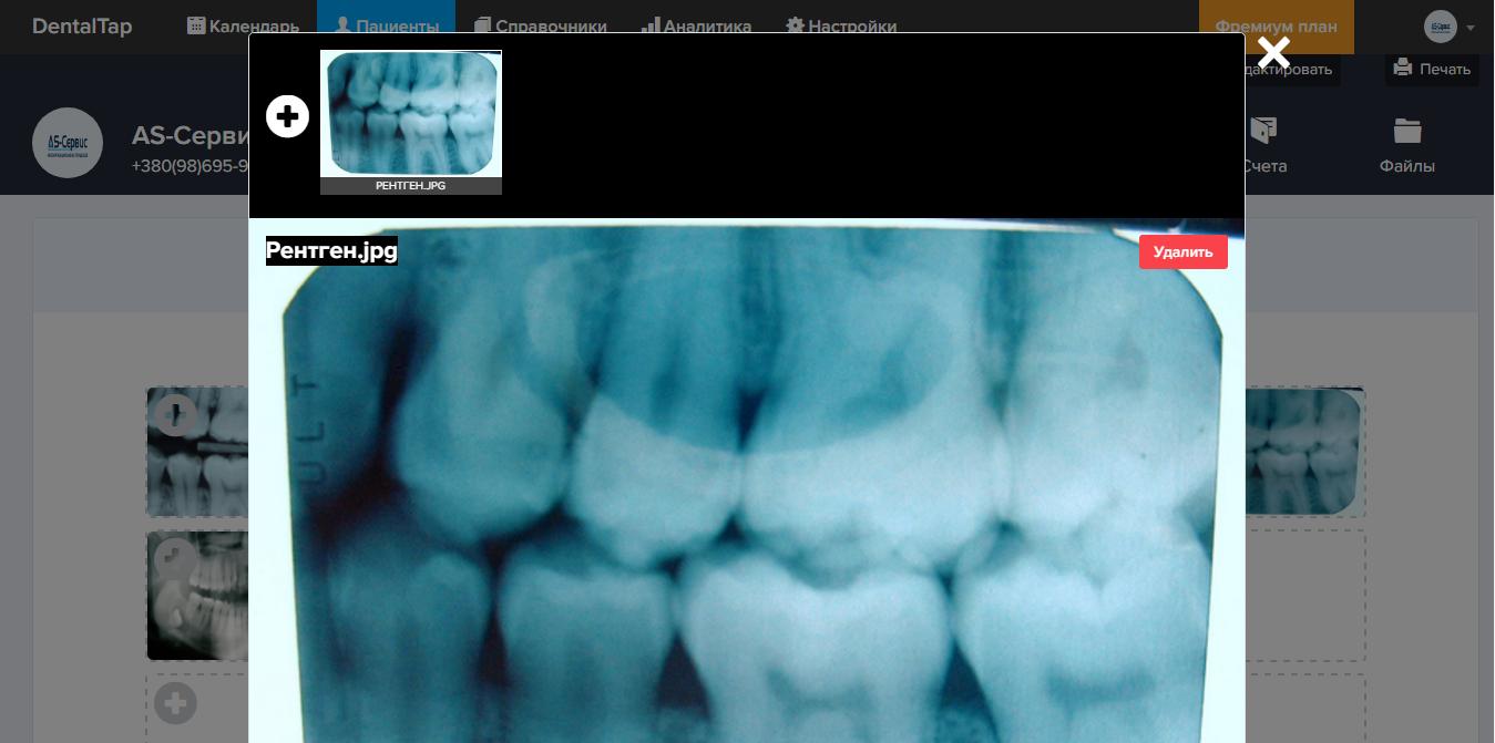 рентгеновские снимки пациента